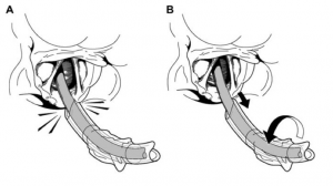 Flip-Flop manoeuvre to avoid R arytenoid hangup when railroading ETT over bougie, via GSA-HEMS